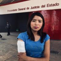 Adolescente es atacada por Bull Terrier en Santa Cruz Tlaxcala: dueños se niegan a pagar daños