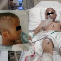 Niño sufre fractura craneal en primaria de Tlaxcala, madre denuncia negligencia